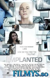 Имплант / Implanted